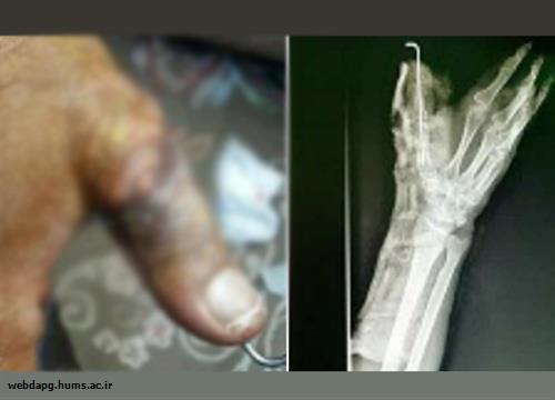 پيوند انگشت قطع شده در بيمارستان ميناب